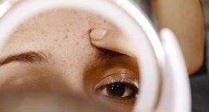 venir à bout de l'acne hormonal féminin